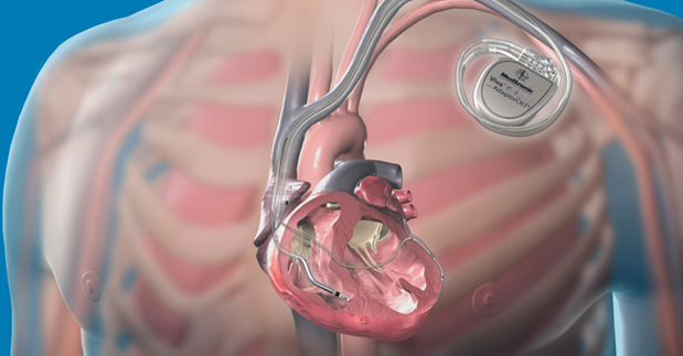 Medtronic's Implantable Defibrillators Vulnerable